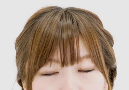 眼瞼下垂によってもたらされる影響
