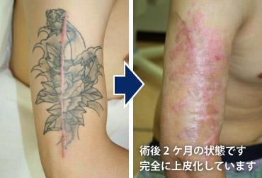 刺青除去 日本橋形成外科 皮フ科 美容外科