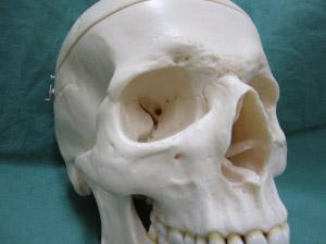 日本橋形成外科目の下のくま■目の下のくま:下眼瞼形成術■1.青黒くま■■3.影くま■目の下のくま:下眼瞼形成術について