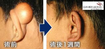 手術症例写真集について 粉瘤、脂肪腫、わきが治療やレーザー